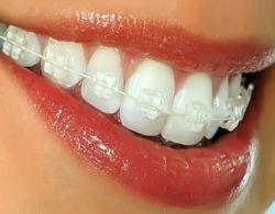 invisible-braces-03