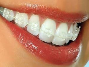 invisible braces 03 300x225 - invisible-braces-03