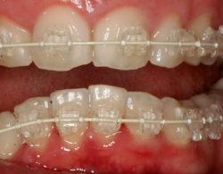 invisible-braces-04