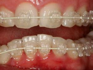 invisible braces 04 300x225 - invisible-braces-04