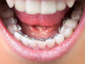 invisible braces 06 300x225 - invisible-braces-06