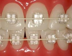 invisible-braces-07
