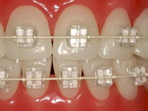 invisible braces 07 300x225 - invisible-braces-07