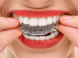invisible braces 08 300x225 - invisible-braces-08