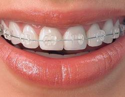 invisible-braces-09