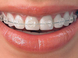 invisible braces 09 300x225 - invisible-braces-09