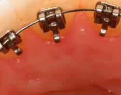 lingual-braces-02