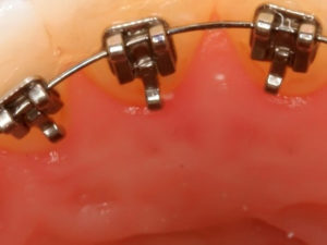 lingual braces 02 300x225 - lingual-braces-02