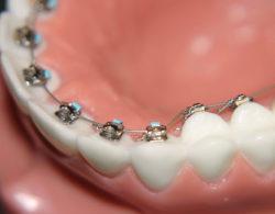 lingual-braces-04