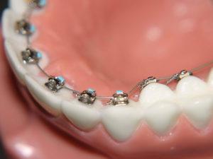 lingual braces 04 300x225 - lingual-braces-04