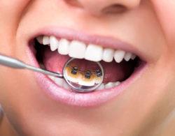 lingual-braces-06