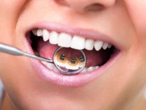 lingual braces 06 300x225 - lingual-braces-06