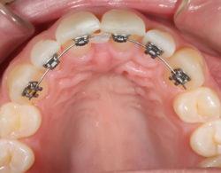 lingual-braces-07