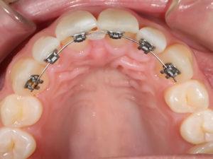 lingual braces 07 300x225 - lingual-braces-07