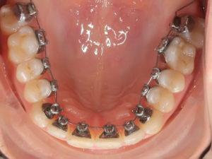 lingual braces 08 300x225 - lingual-braces-08