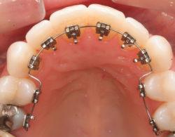 lingual-braces-09