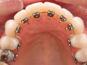 lingual braces 09 300x225 - lingual-braces-09