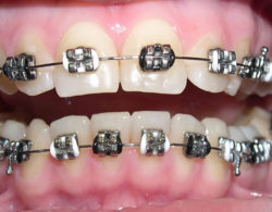 metallic-braces-01