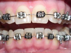 metallic braces 01 300x225 - metallic-braces-01