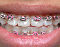metallic-braces-011