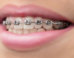 metallic-braces-02