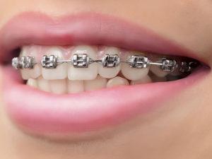 metallic braces 02 300x225 - metallic-braces-02
