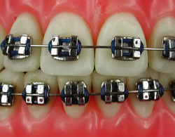 metallic-braces-03