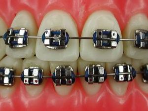 metallic braces 03 300x225 - metallic-braces-03