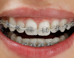metallic-braces-04