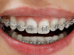 metallic braces 04 300x225 - metallic-braces-04