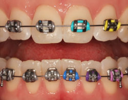 metallic-braces-06