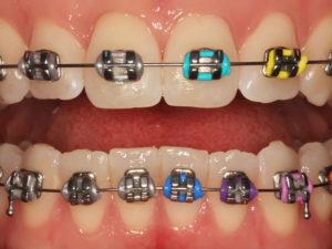 metallic braces 06 300x225 - metallic-braces-06