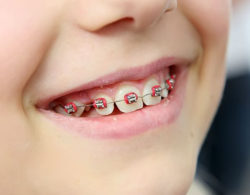 metallic-braces-08