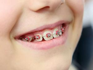 metallic braces 08 300x225 - metallic-braces-08