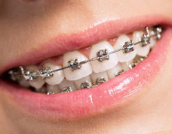 metallic-braces-09