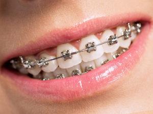 metallic braces 09 300x225 - metallic-braces-09