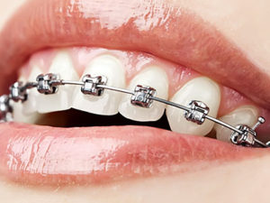 metallic braces 300x225 - Металлические брекеты