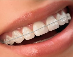 sapphire-braces-01