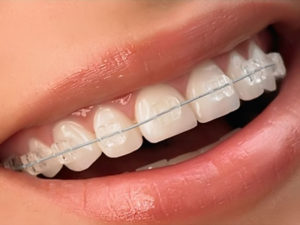 sapphire braces 01 300x225 - sapphire-braces-01