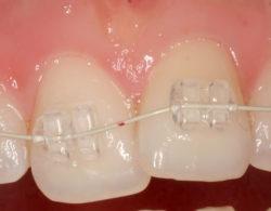 sapphire-braces-02
