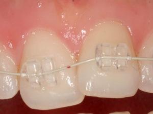 sapphire braces 02 300x225 - sapphire-braces-02