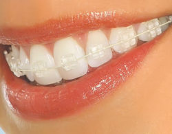 sapphire-braces-03