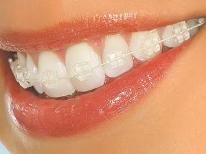 sapphire braces 03 300x225 - sapphire-braces-03