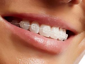 sapphire braces 06 300x225 - sapphire-braces-06
