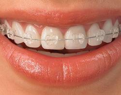 sapphire-braces-07