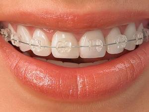 sapphire braces 07 300x225 - sapphire-braces-07