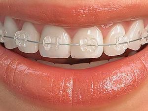 sapphire braces 300x225 - Сапфировые брекеты
