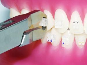 snyatie braces 02 300x225 - snyatie-braces-02