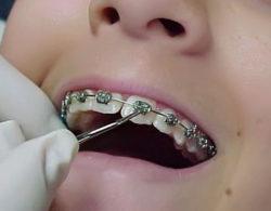 snyatie-braces-03