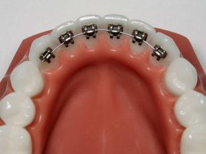 vnutrennie braces 02 300x225 - vnutrennie-braces-02